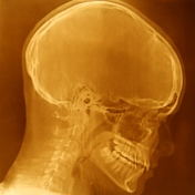 Neural (Illuminated)